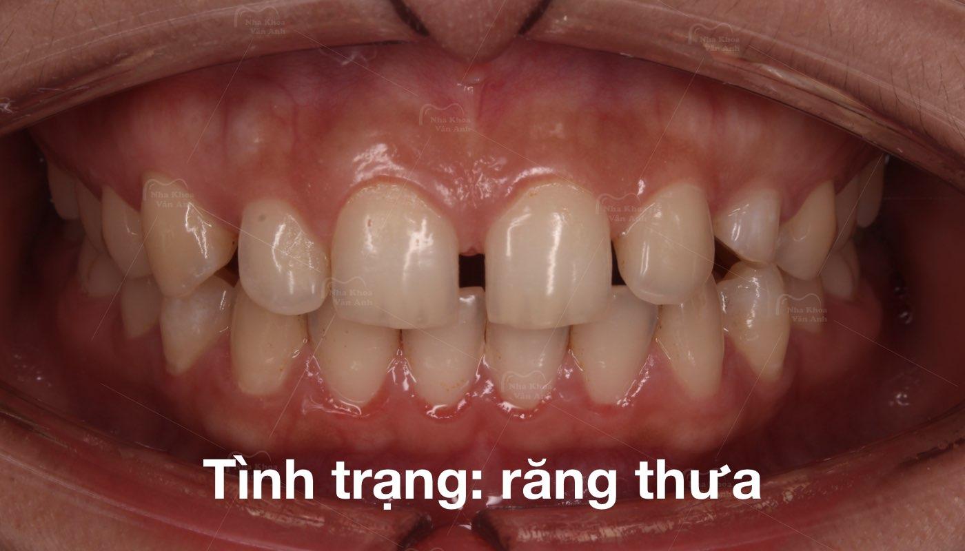 Khe thưa răng cửa - Nha Khoa Vân Anh