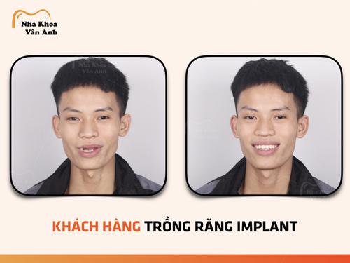 trong-rang-implant-tai-bac-ninh