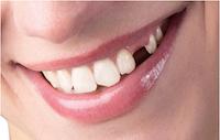 Trồng răng Implant tại Bắc Ninh: nhanh chóng, an toàn, bền chắc trọn đời