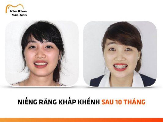 Niềng răng trả góp tại Bắc Ninh 1