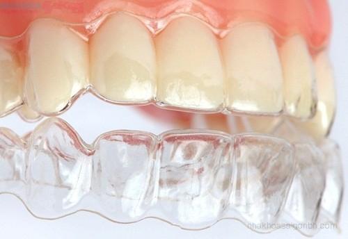 Niềng răng trong suốt Invisalign – Công nghệ mới