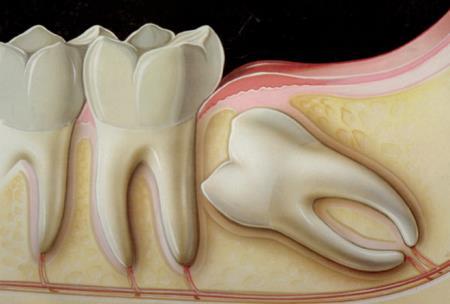 Khi nào bạn nên đi nhổ răng khôn?