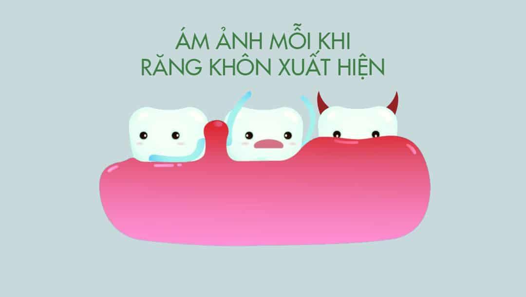 4 Triệu chứng mọc răng khôn phổ biến cần biết!