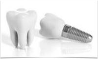 Vì sao phải cấy ghép implant?