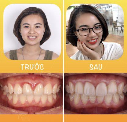 Răng sứ thẩm mĩ Bắc Ninh 2