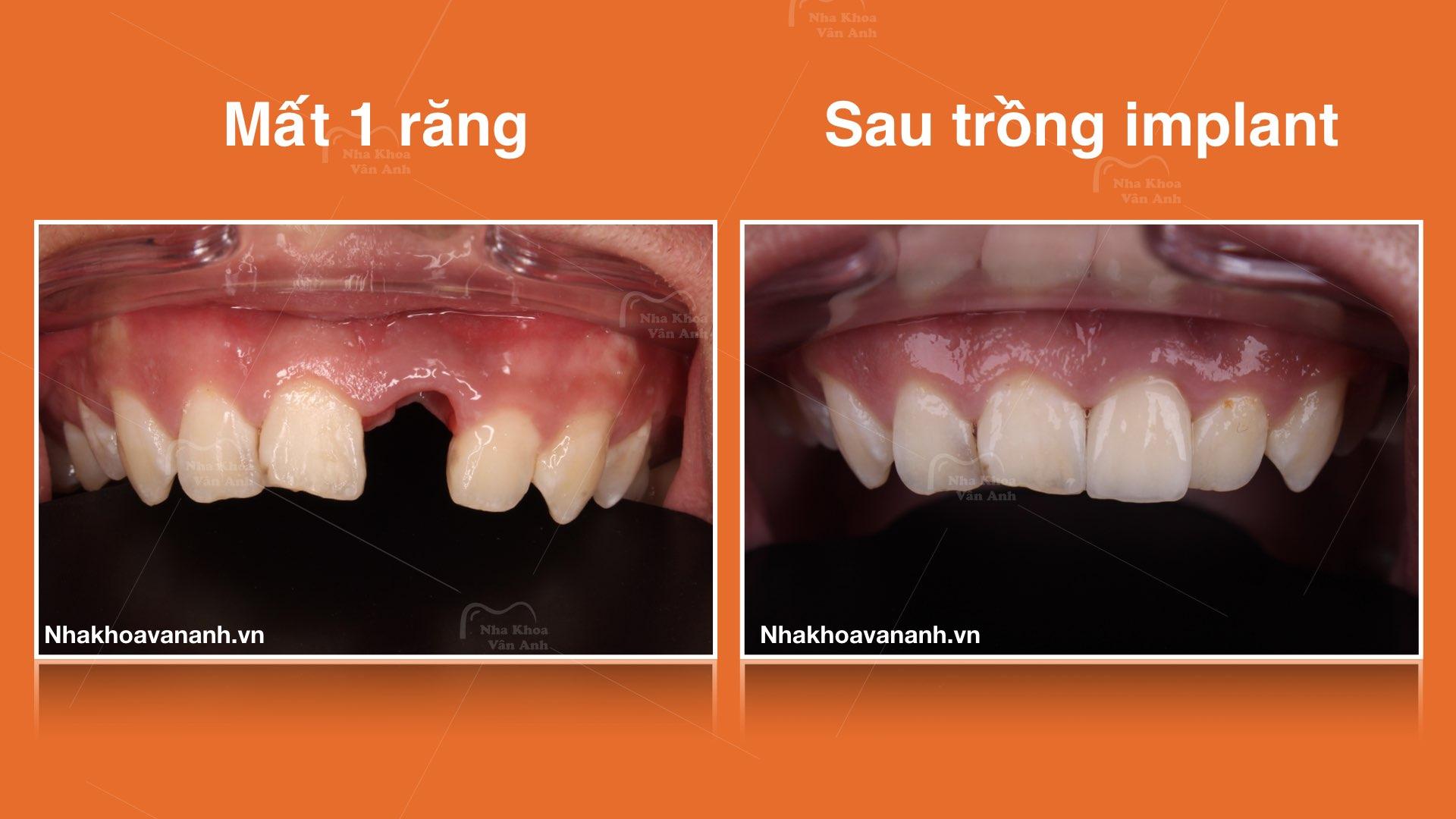 Giải pháp nào tốt nhất cho người mất răng