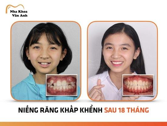 Niềng răng cho trẻ ở tuổi nào hiệu quả nhất? 3
