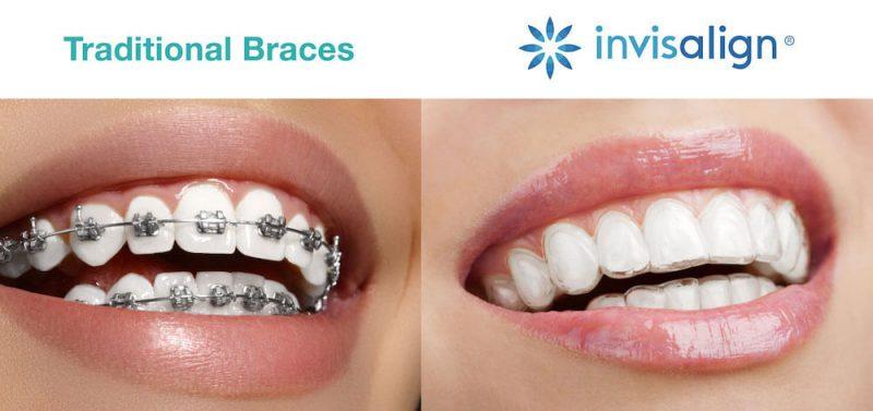 Niềng răng trong suốt dùng trong trường hợp nào?