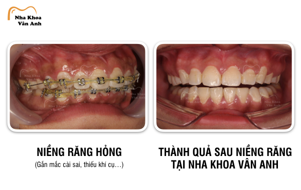 Một trường hợp niềng răng hỏng do: gắn sai mắc cài, sử dụng thiếu khí cụ,...đã được điều trị thành công tại Nha khoa Vân Anh