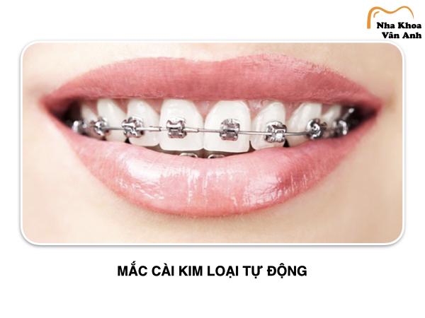 Mắc cài kim loại tự động cũng thuộc top các loại niềng răng được ưa chuộng hiện nay