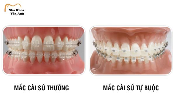 So sánh các loại niềng răng:mắc cài sứ truyền thống và mắc cài sứ tự buộc