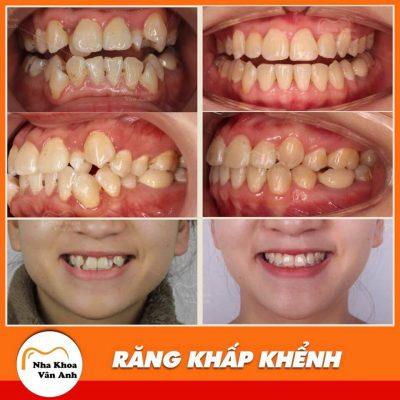 Khách hàng niềng răng thành công tại nha khoa Vân Anh
