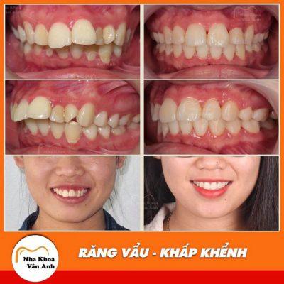 Các trường hợp niềng răng khấp khểnh thành công tại nha khoa vân anh