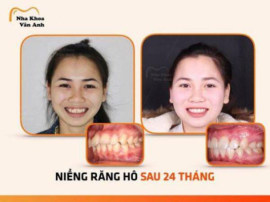 Trường hợp răng hô-khấp khểnh nặng thay đổi sau 2 năm - mắc cài kim loại tự động