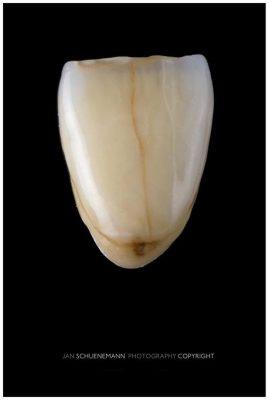 Răng bị nứt vỡ cũng là một trong những tác hại của bọc răng sứ nếu không được thực hiện đúng kĩ thuật