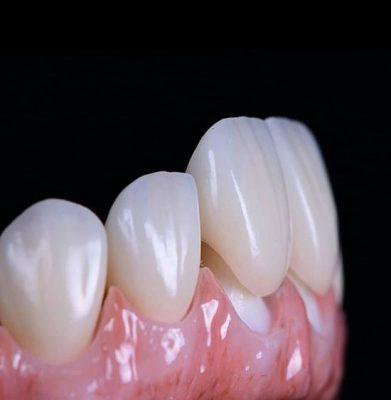 Răng sứ giúp cải thiện thẩm mỹ tuyệt đối cho hàm răng của bạn