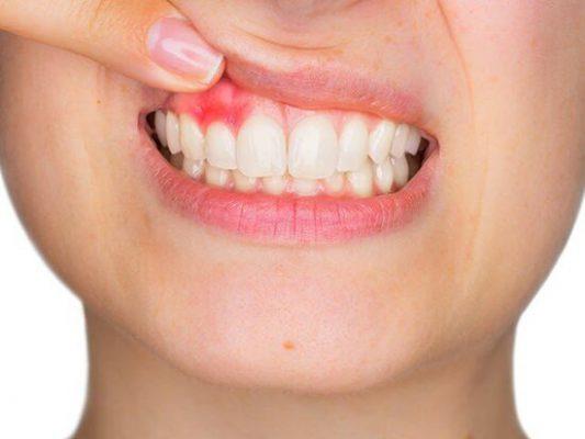 Bọc răng sứ không chuẩn sẽ gây viêm lợi
