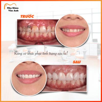 Bọc răng sứ giúp khắc phục tình trạng sâu kẽ