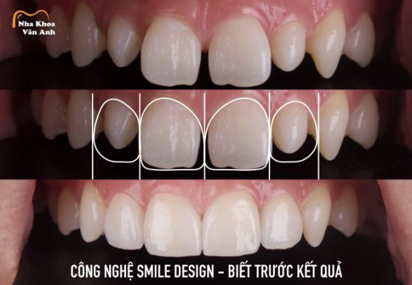 Công nghệ Smile Design - Thiết kế nụ cười - Biết trước kết quả