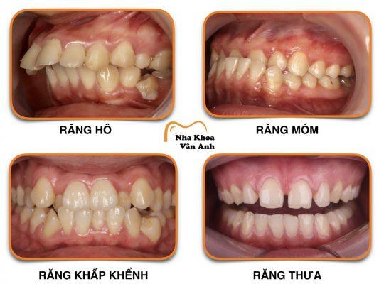 Với các sai lệch răng nặng nên lựa chọn niềng răng thay vì răng sứ thẩm mỹ