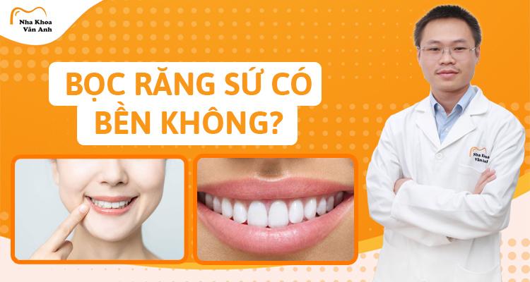 Bọc răng sứ có bền không?Bao lâu hỏng-Vĩnh viễn ko