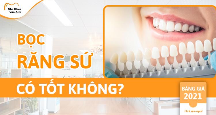 Có nên bọc răng sứ? Có tốt không? Bảng giá 2021 mới nhất!