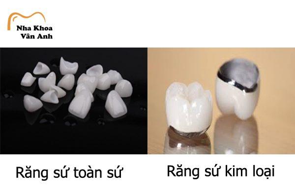 Răng sứ thẩm mỹ có 2 loại răng toàn sứ và răng kim loại
