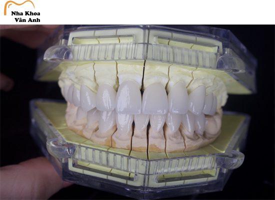 Răng sứ sẽ được bọc bên ngoài răng thật để cải thiện chức năng thẩm mỹ và ăn nhai