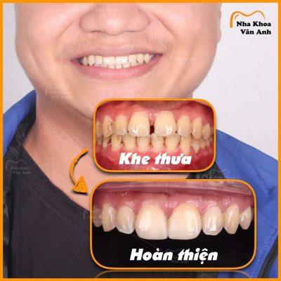 Một ca răng thưa-xỉn màu thực hiện bọc sứ thành công tại nha khoa Vân Anh