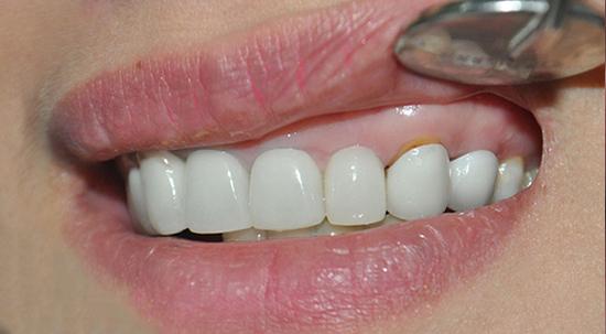 Tình trạng hở cổ răng sau khi làm răng sứ không đúng kĩ thuật