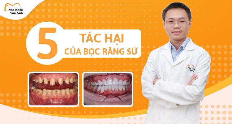 5 tác hại của bọc răng sứ! Biểu hiện và nguyên nhân