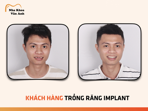 trong-rang-implant-co-nguy-hiem-khong-bien-chung-sau-trong-implant-3