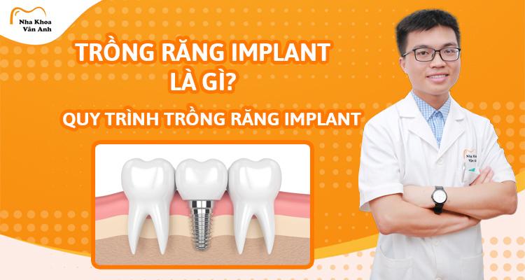 Trồng răng Implant là gì? Giá bao nhiêu? Quy trình thế nào?