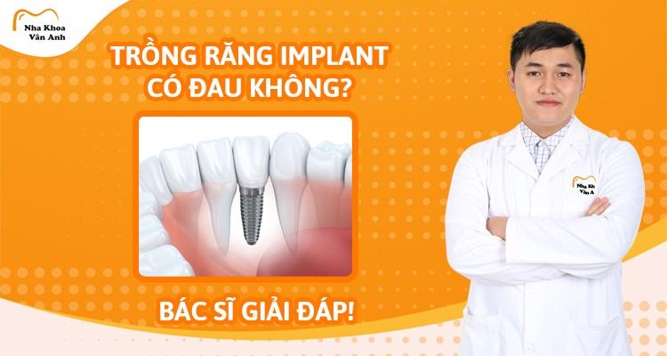 Trồng răng Implant có đau không? – Bác sĩ giải đáp