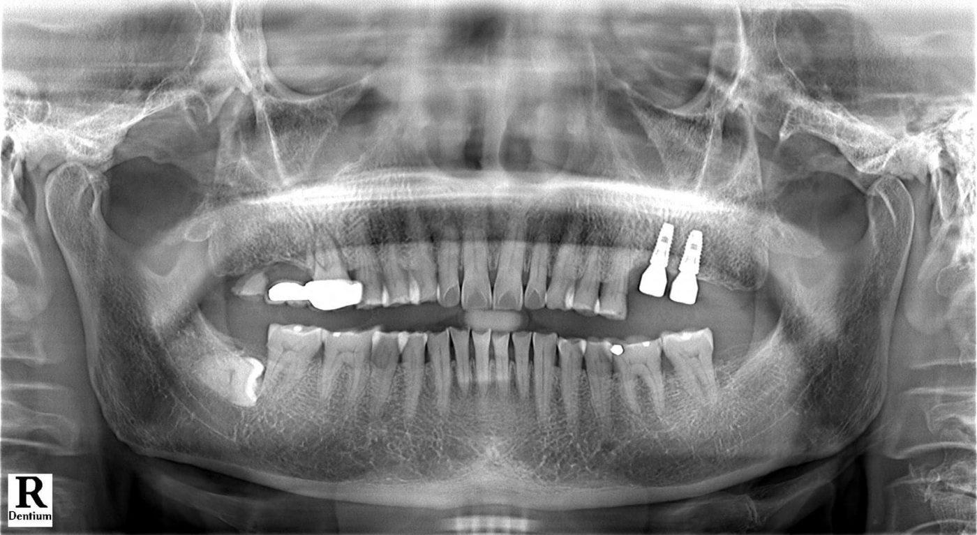 trong-rang-implant-co-nguy-hiem-khong-bien-chung-sau-trong-rang-8