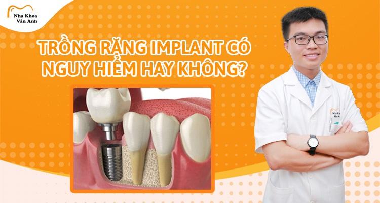 Trồng răng Implant có nguy hiểm không? Có biến chứng gì không?