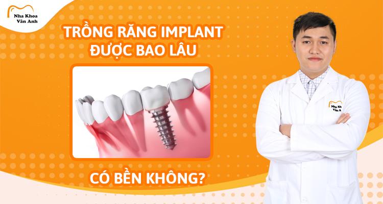 Trồng răng Implant được bao lâu? Có bền không?