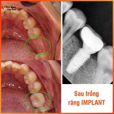 trong-rang-implant-co-nguy-hiem-khong-bien-chung-sau-trong-implant-1