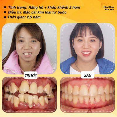 Khách hàng niềng răng mắc cài thành công tại Nha khoa Vân Anh