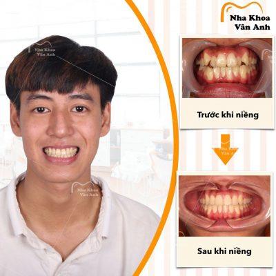 Hình ảnh khách hàng nam niềng răng thành công tại nha khoa Vân Anh