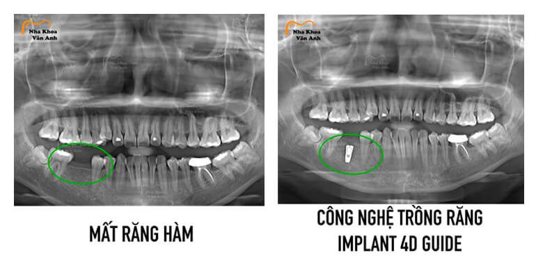 dia-chi-trong-rang-implant - uy -tin-an-toan-tai-bac-ninh