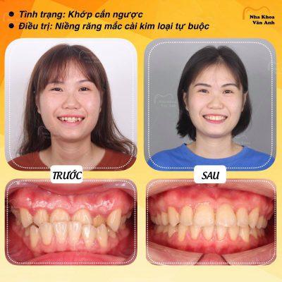 Khách hàng niềng răng để khắc phục tình trạng khớp cắn ngược tại nha khoa Vân Anh