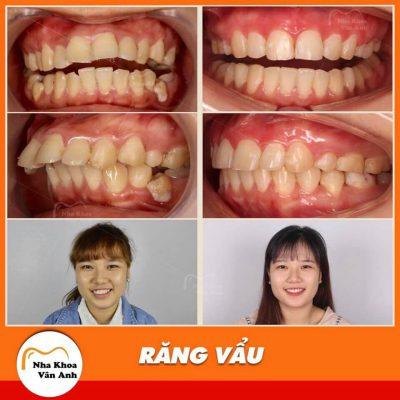 Khách hàng niềng răng tại Nha khoa Vân Anh để khắc phục tình trạng răng vẩu