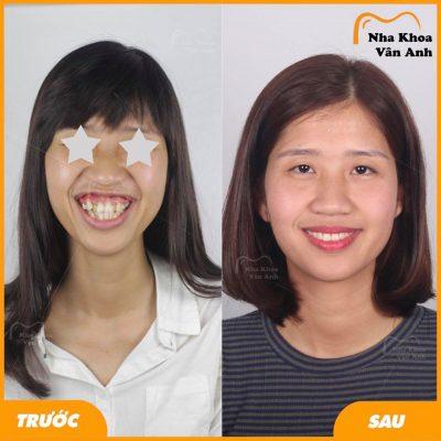 Hình ảnh khách hàng nữ niềng răng thành công tại nha khoa Vân Anh