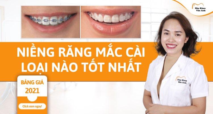 Niềng răng mắc cài loại nào tốt nhất?Giá bao nhiêu 2021?