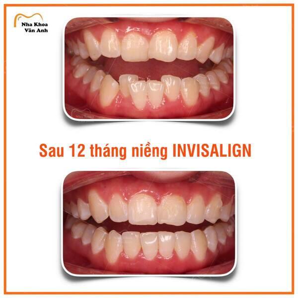 Một ca niềng răng thành công với Invisalign tại nha khoa Vân Anh chỉ sau 12 tháng
