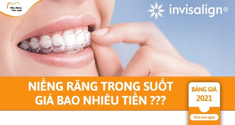 Niềng răng trong suốt giá bao nhiêu tiền? Hiệu quả không?