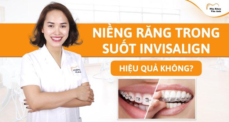 Niềng răng trong suốt Invisalign có hiệu quả không? Bảng giá 2021?