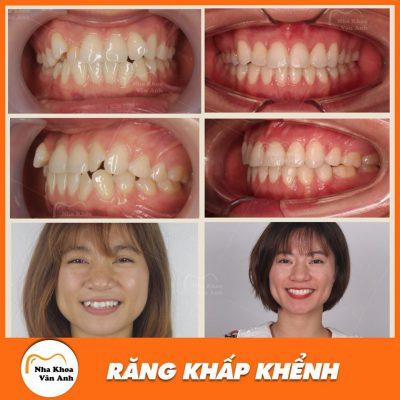 Hình ảnh khách hàng niềng răng khấp khểnh thành công tại nha khoa Vân Anh