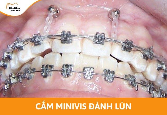 Minivis